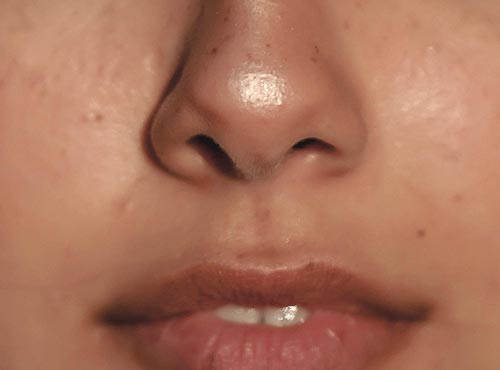 A close up of a nose and mouth